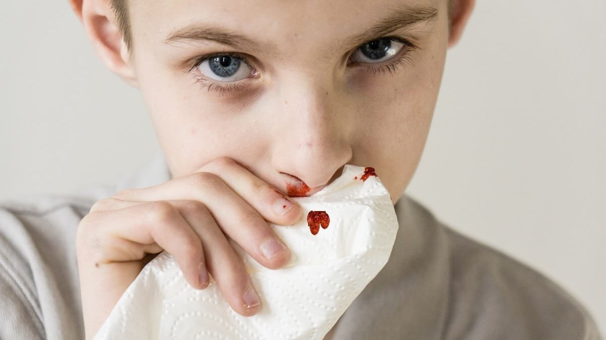 Носовое кровотечение: причины и методы лечения