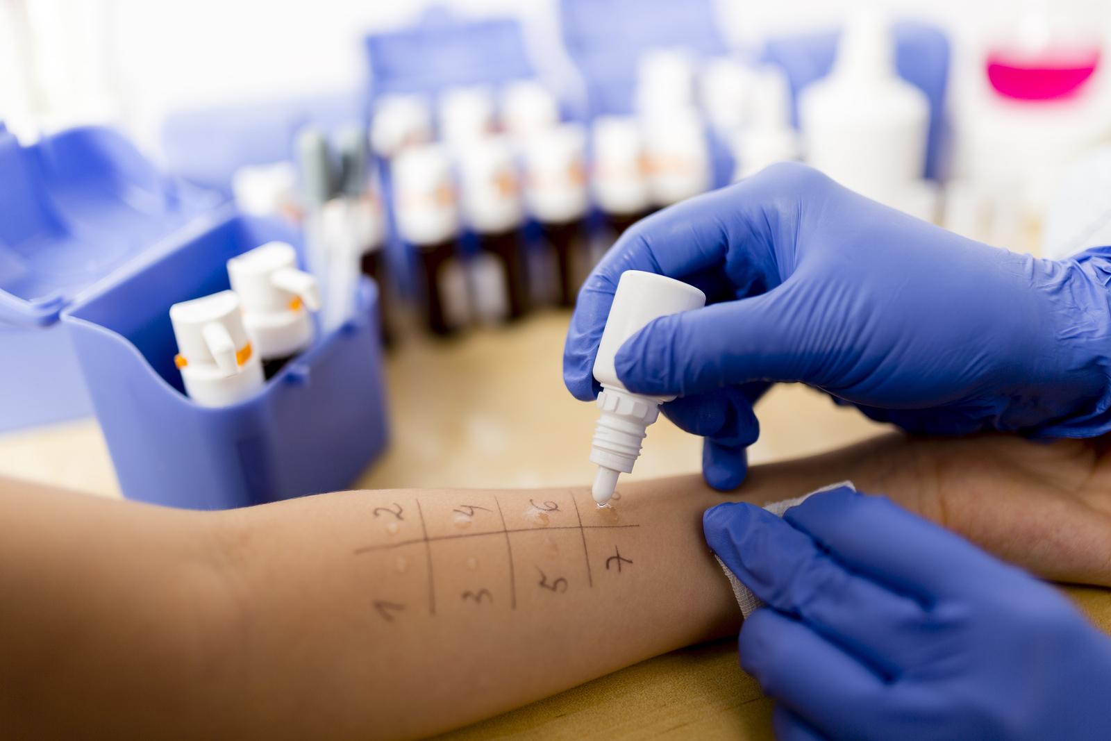 Пробы на аллергию детям: виды, подготовка к процедуре