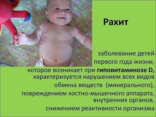 Признаки рахита у детей после года: как лечить ребенка в 2-3 года, питание и симптомы