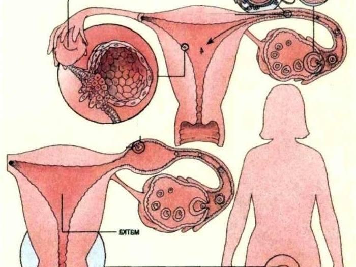Беременность и уреплазмоз: можно ли забеременеть при уреаплазме?