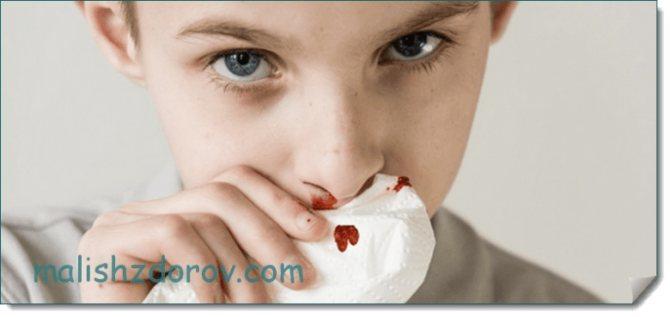 Как остановить кровь из носа у ребенка: что делать в домашних условиях, если часто идет носовое кровотечение, как правильно и быстро решить проблему?