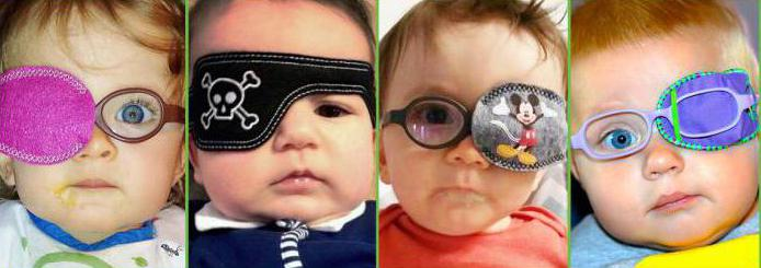 Гимнастика для глаз при косоглазии у детей разных возрастов