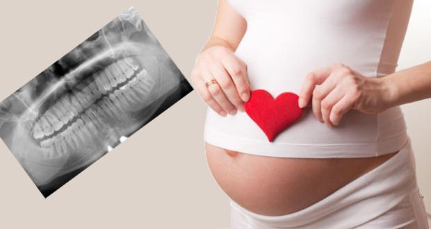 Рентген при беременности: можно ли делать на ранних сроках, влияние рентгенографии ноги