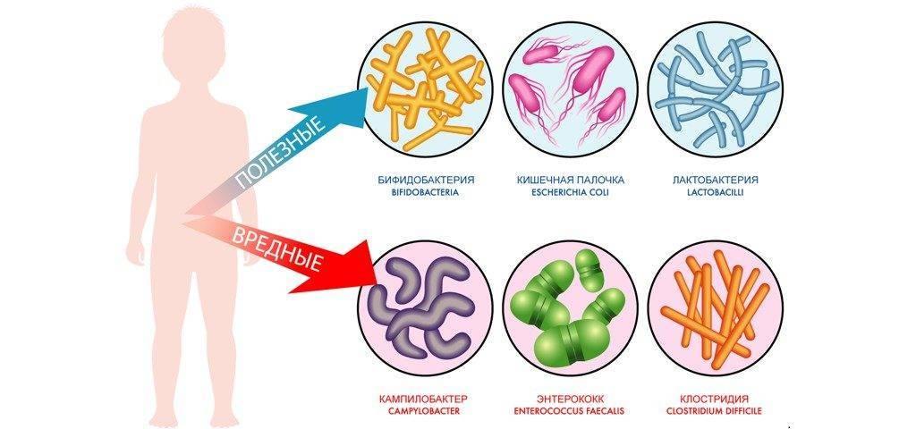Дисбактериоз у грудничков: симптомы, признаки, лечение