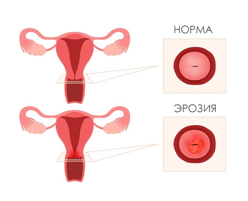 Влияет ли уреаплазма на зачатие?