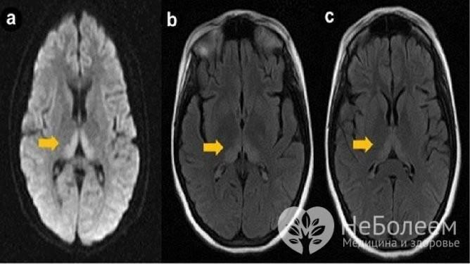 Резидуальная энцефалопатия головного мозга: причины и лечение