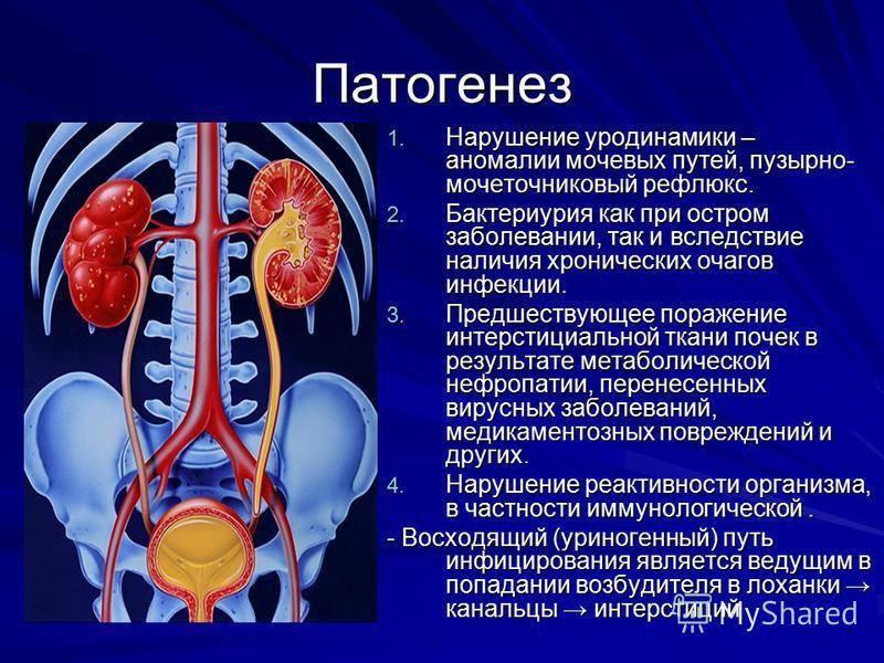 Воспаление почек у ребенка: симптомы, причины и признаки, эффективные средства лечения болезни