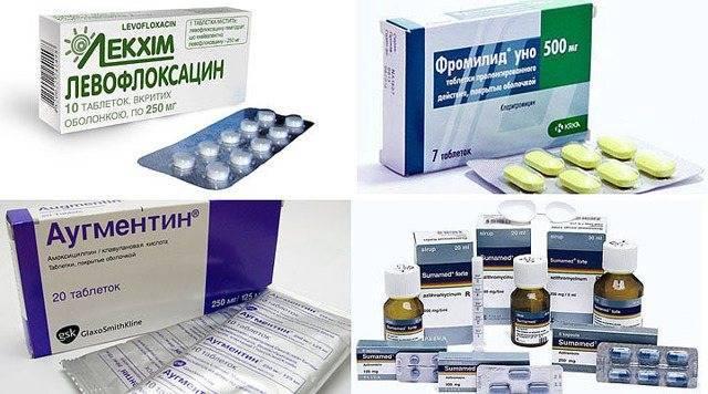 Антибиотик при отите у детей: правила приема, лечение отита в домашних условиях