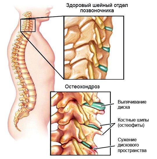 Остеохондроз при беременности: симптомы и лечение