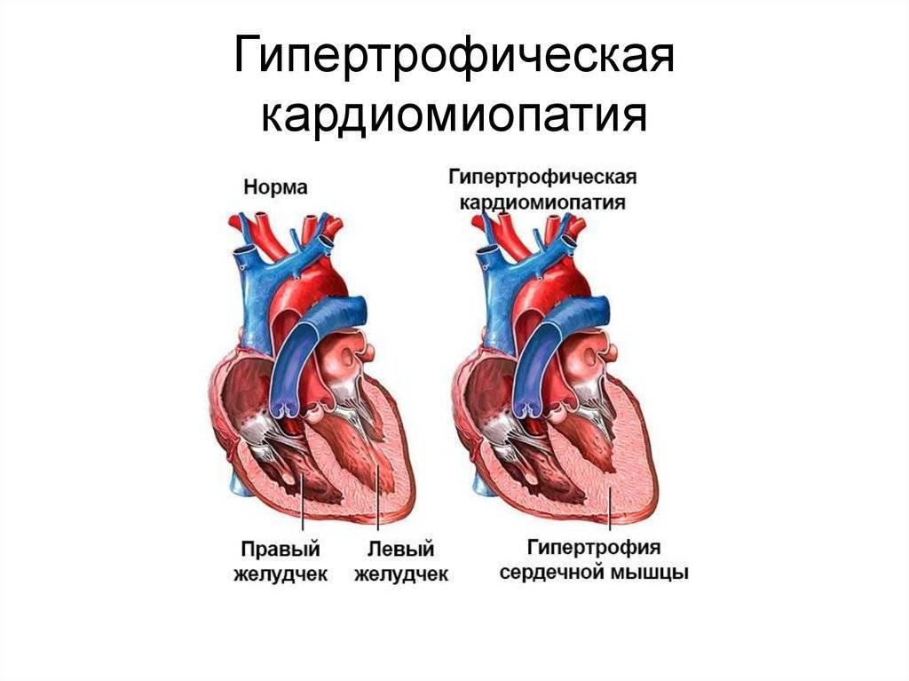Функциональные кардиопатии