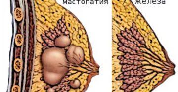 Что делать, если есть уплотнение в молочной железе?
