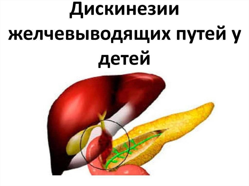 Дискинезия желчевыводящих путей у детей - симптомы и лечение джвп, диета