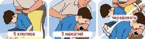 Что делать, если ребенок подавился: пошаговая инструкция
