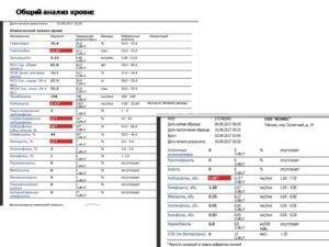 Расшифровка анализа крови ребенка на мононуклеоз
