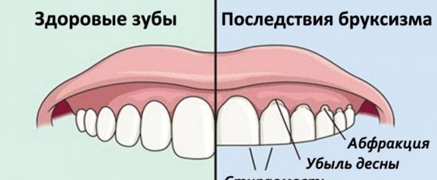 Ребенок постоянно скрипит зубами во сне - экспертное мнение комаровского о причинах бруксизма у детей