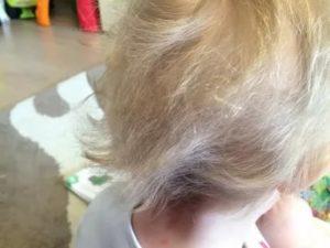 Почему у ребенка очень плохо растут волосы, выпадают: причины и коррекция проблемы у грудничков и детей постарше. когда стоит волноваться, если у грудничка плохо растут волосы