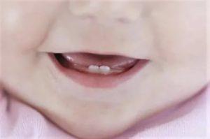 Сопли при прорезывании зубов у детей: обязательный симптом или признак орви?