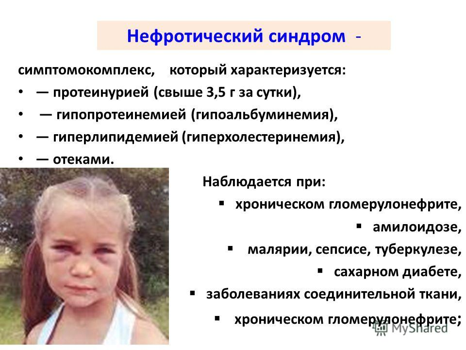 Синдром ретта