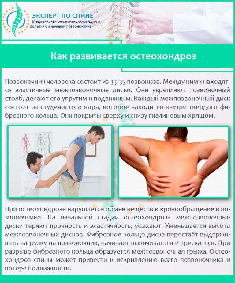 Симптомы остеохондроза, признаки поражения шейного, грудного и поясничного отдела