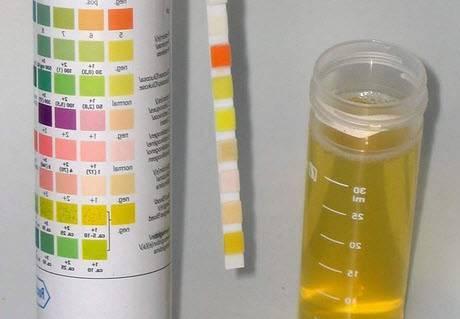 Ацетон в моче (ацетонурия) - причины, симптомы, лечение, диета, ответы на вопросы