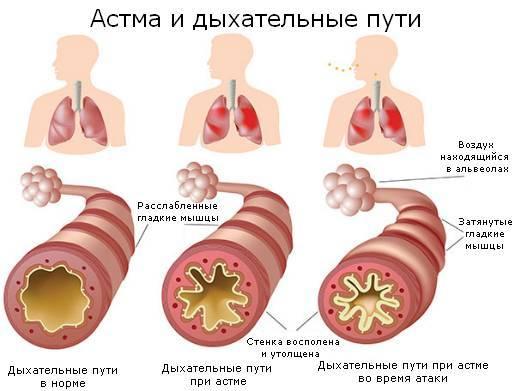 Астма у детей: классификация, причины, симптомы, лечение