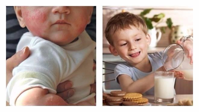 Аллергия на молоко - симптомы и проявления. обзор аллергенов