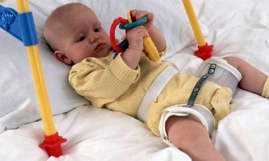 Дисплазия суставов у детей: симптомы, причины развития, диагностика и лечение