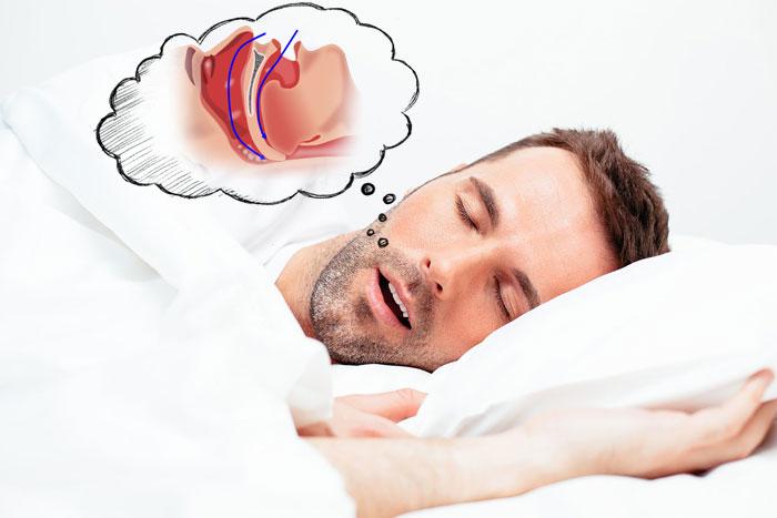 Храп у ребенка во сне ночью: причины и лечение сильного детского храпа во время сна - нealthнacks