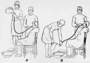 Промывание желудка ребенку до года, 1-2 года и старше