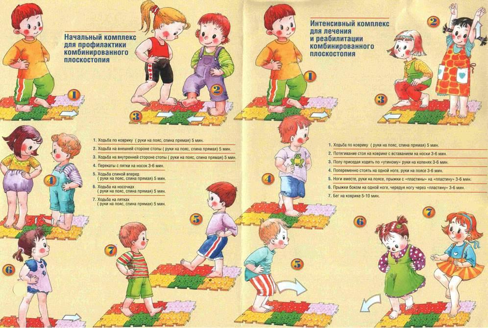Плоскостопие у детей. причины, симптомы, лечение и профилактика плоскостопия | здоровье детей