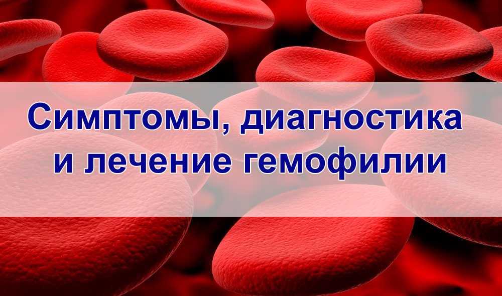 Гемофилия – причины (наследуемый рецессивный ген), вероятность заболевания, типы, симптомы и признаки, диагностика, принципы лечения и препараты