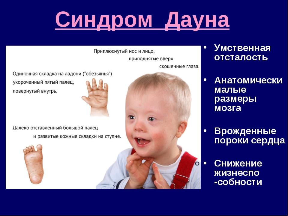 Характеристика легкой умственной отсталости у детей: симптомы и признаки