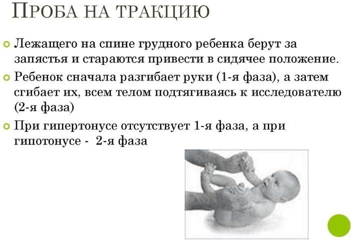 Массаж при мышечной дистонии: детский массаж и гимнастика при гипертонусе мышц у ребенка, расслабляющий массаж ног для грудничков для снятия тонуса
