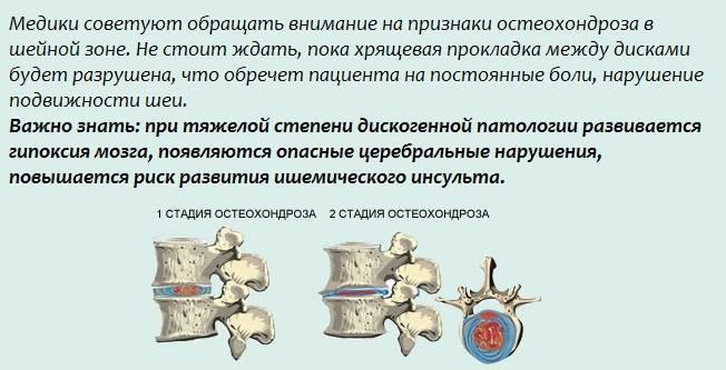 Последствия остеохондроза - чем опасен остеохондроз, симптомы и осложнения