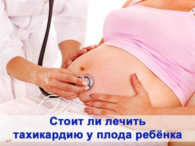 Брадикардия во время родов у плода