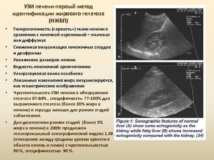 Увеличение левой доли печени: причины и лечение, узи диагностика
