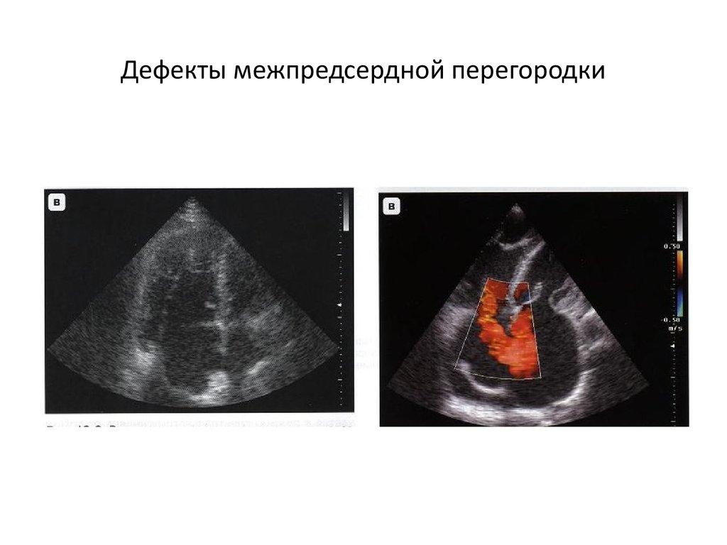 Дефект межпредсердной перегородки (дмпп) сердца у детей и взрослых: причины и лечение