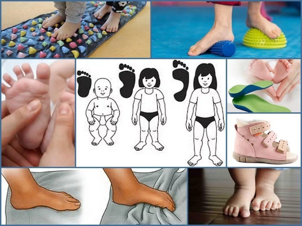 Плоскостопие у детей: как определить, лечение и упражнения в домашних условиях