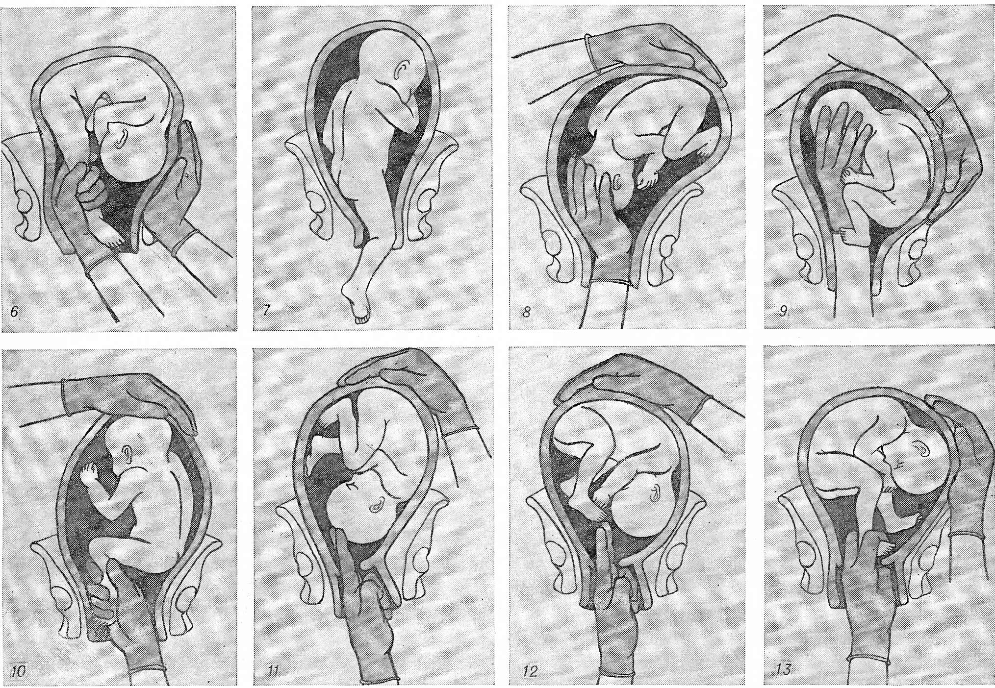 Плацента по передней стенке и шевеления плода: особенности беременности, ощущение женщины и мнения гинекологов