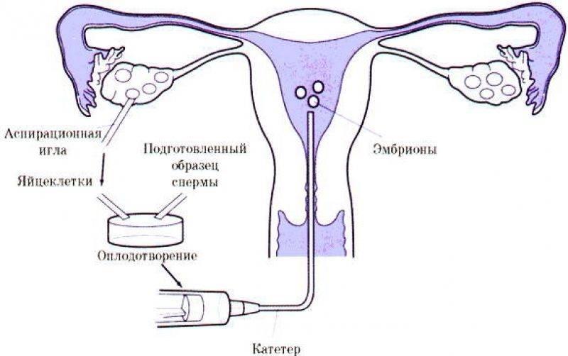 На какой день после подсадки эмбриона при эко делают первое узи, каковы признаки наступления беременности?