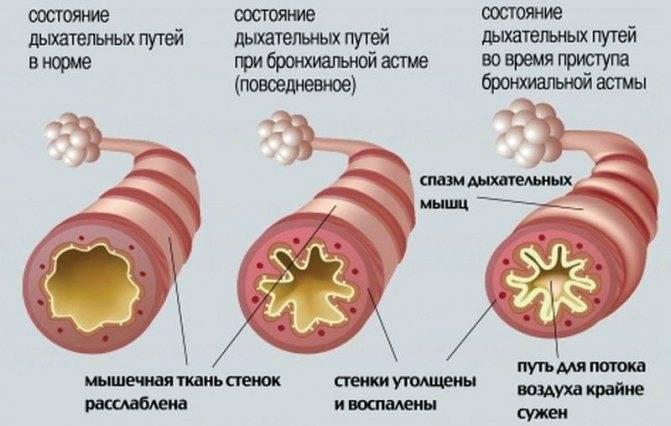 Признаки бронхиальной астмы у детей (симптомы у детей до года и старше)