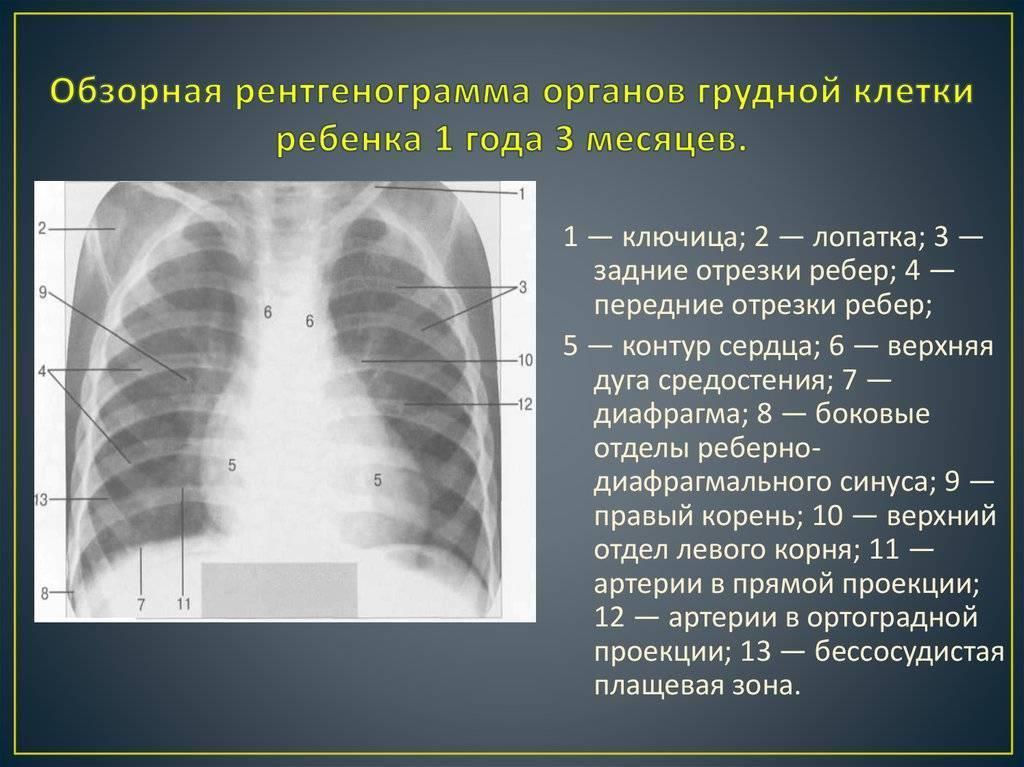 Рентген грудной клетки при коронавирусе: что показывает, как выглядят лёгкие?