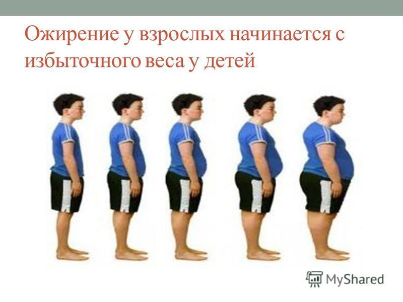 Ожирение у детей – почему оно развивается и какие есть стадии патологии?