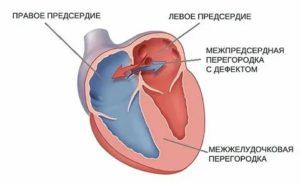 Открытое овальное окно в сердце у ребенка что это такое причины как лечить — заболевания сердца