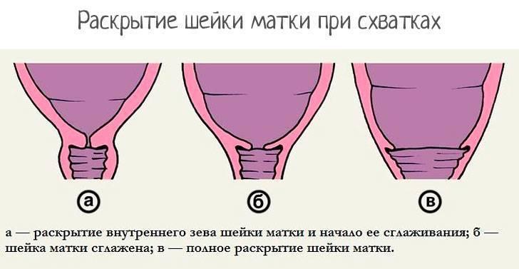 Что означает раскрытие шейки матки от 1 до 4 пальцев?