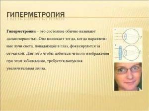 Гиперметропия слабой степени обоих глаз у детей
