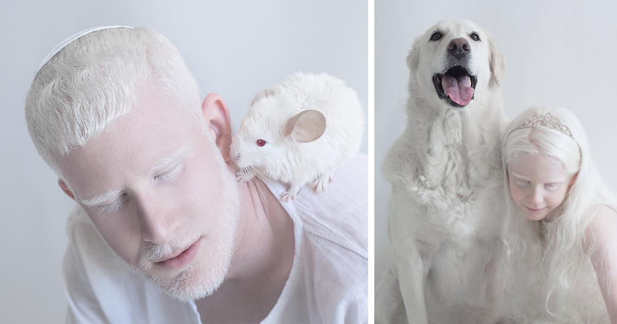 Альбинизм у человека - причины возникновения и как наследуется | люди - альбиносы