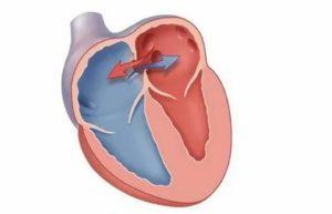 Овальное окно в сердце у детей: характеристика, причины патологии, симптоматика и лечение