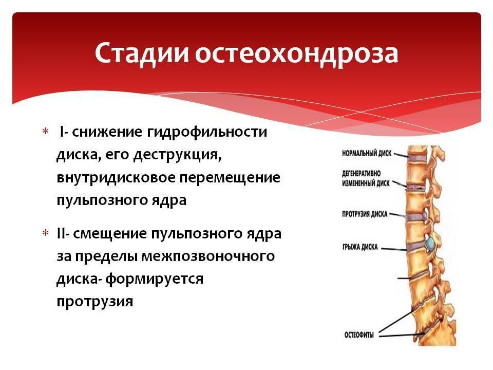 Остеохондроз — симптомы, причины, лечение и профилактика заболевания