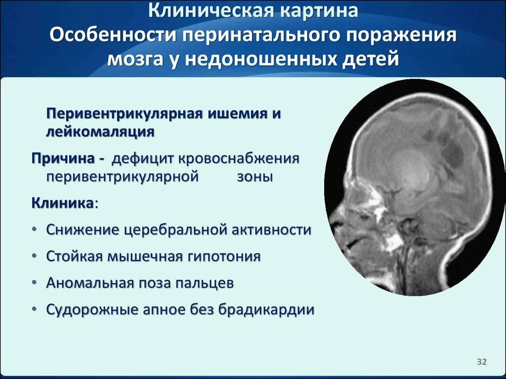 Гипоксия головного мозга у новорожденных детей: причины, симптомы, последствия